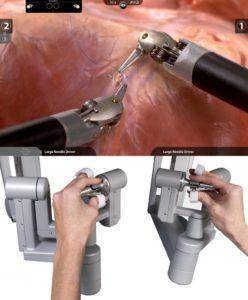 cirurgia robótica - slide 2