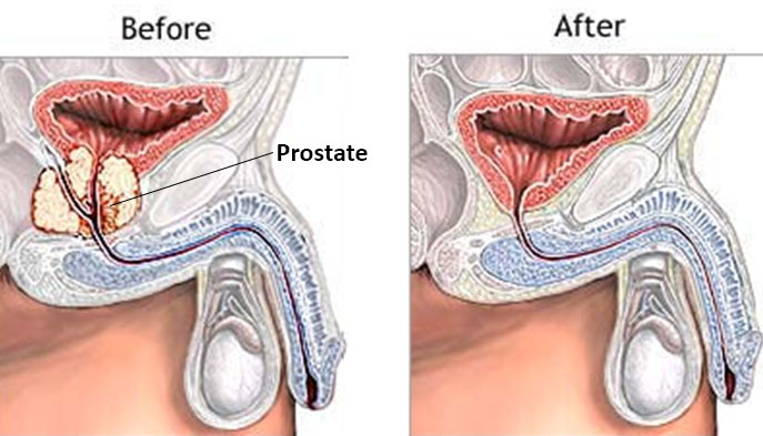 Prostatectomia Radical O Que 233 Dr Jos 233 Alexandre Pedrosa