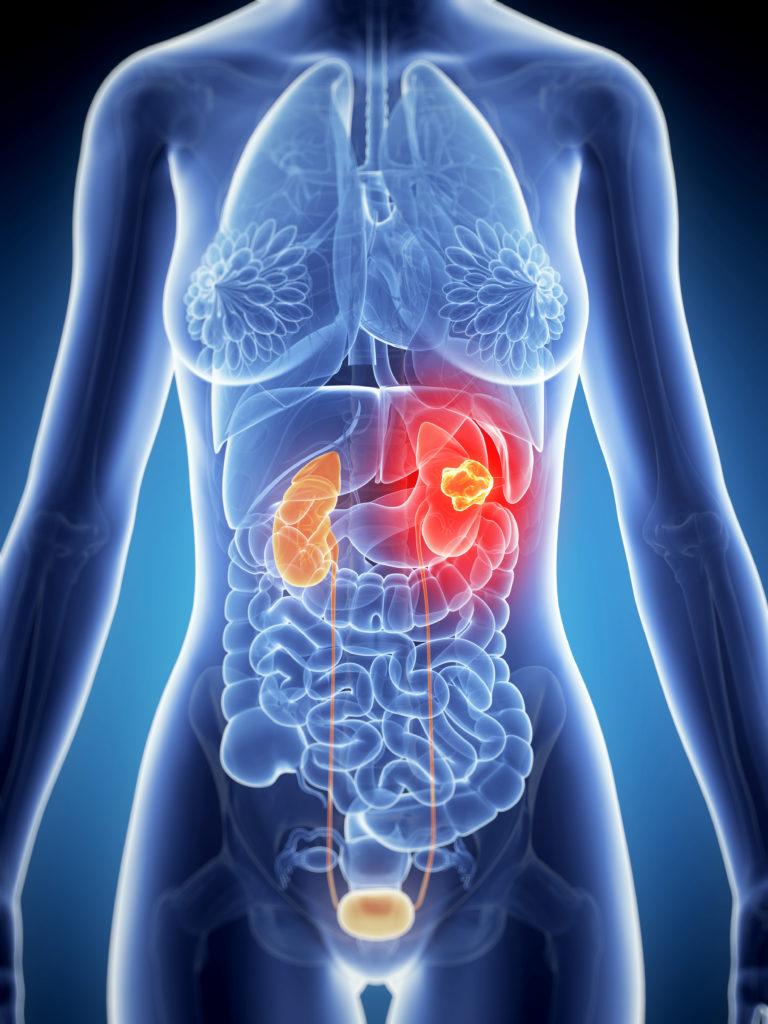 Nódulo no Rim – Detecção, diagnóstico e tratamento