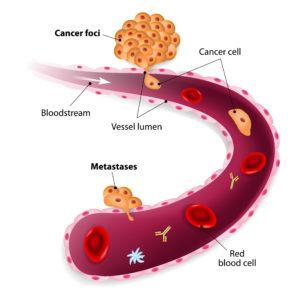 cancer de bexiga