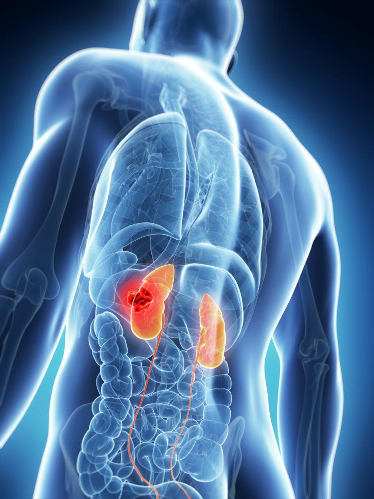 Laparoscopia para Tumores Renais