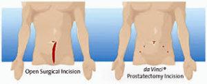 Cirurgia de prostata