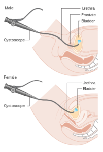 cistoscopia flexível