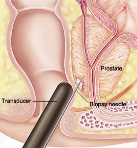 Tipos de Biópsia Prostática