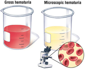 Sangue na urina