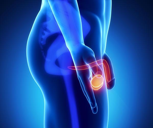 Nódulo ou caroço no testiculo – o que fazer?