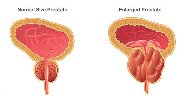 Qual tamanho normal da próstata?