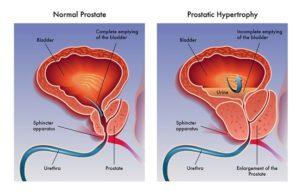 medida peso prostata normal