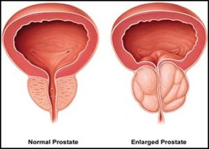diámetro de próstata a 76 en