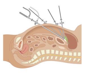 Prostatectomia laparoscópica