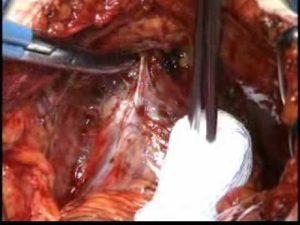 prostatectomia radical aberta