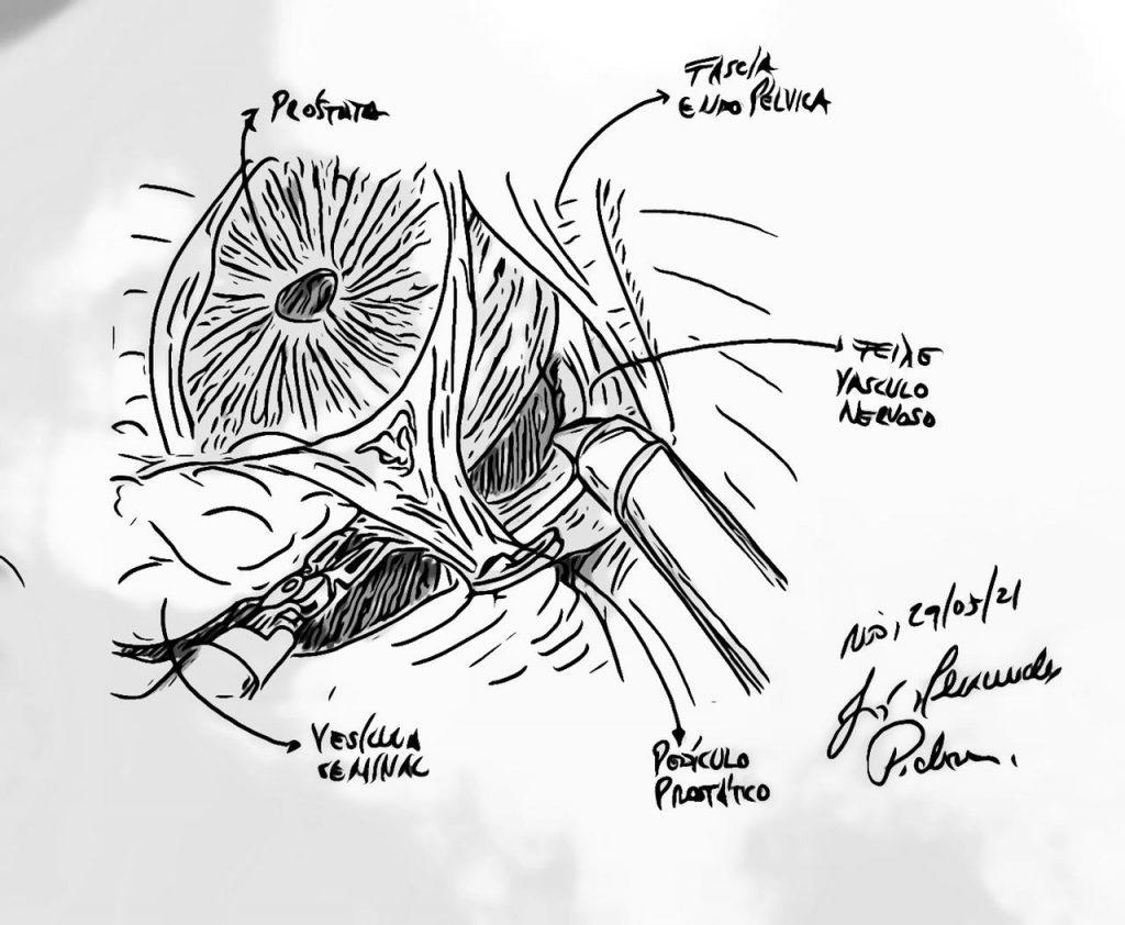 Cirurgia Robótica da Próstata – hoje