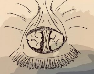 cirurgia de próstata